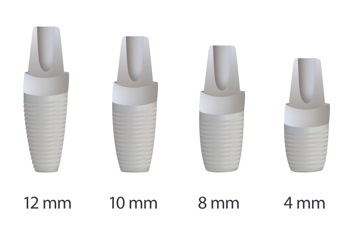 Implantes dentales cortos que son