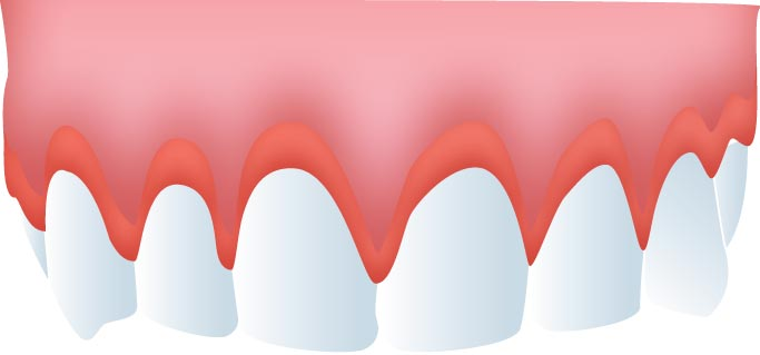 Raspado y alisado radicular gingivitis