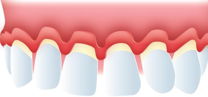 Raspado y alisado radicular periodontitis