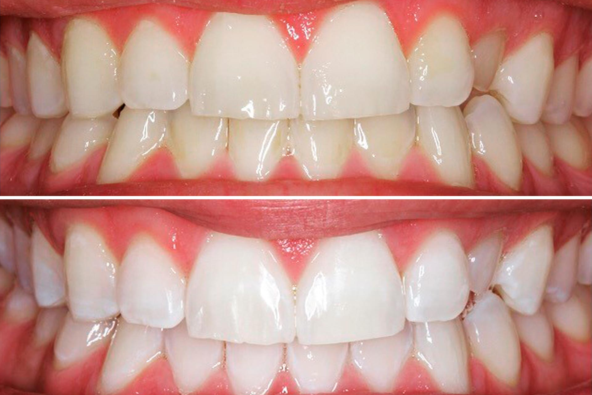 Preguntas frecuentes blanqueamiento dental