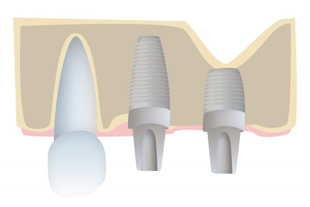 Implantes dentales cortos
