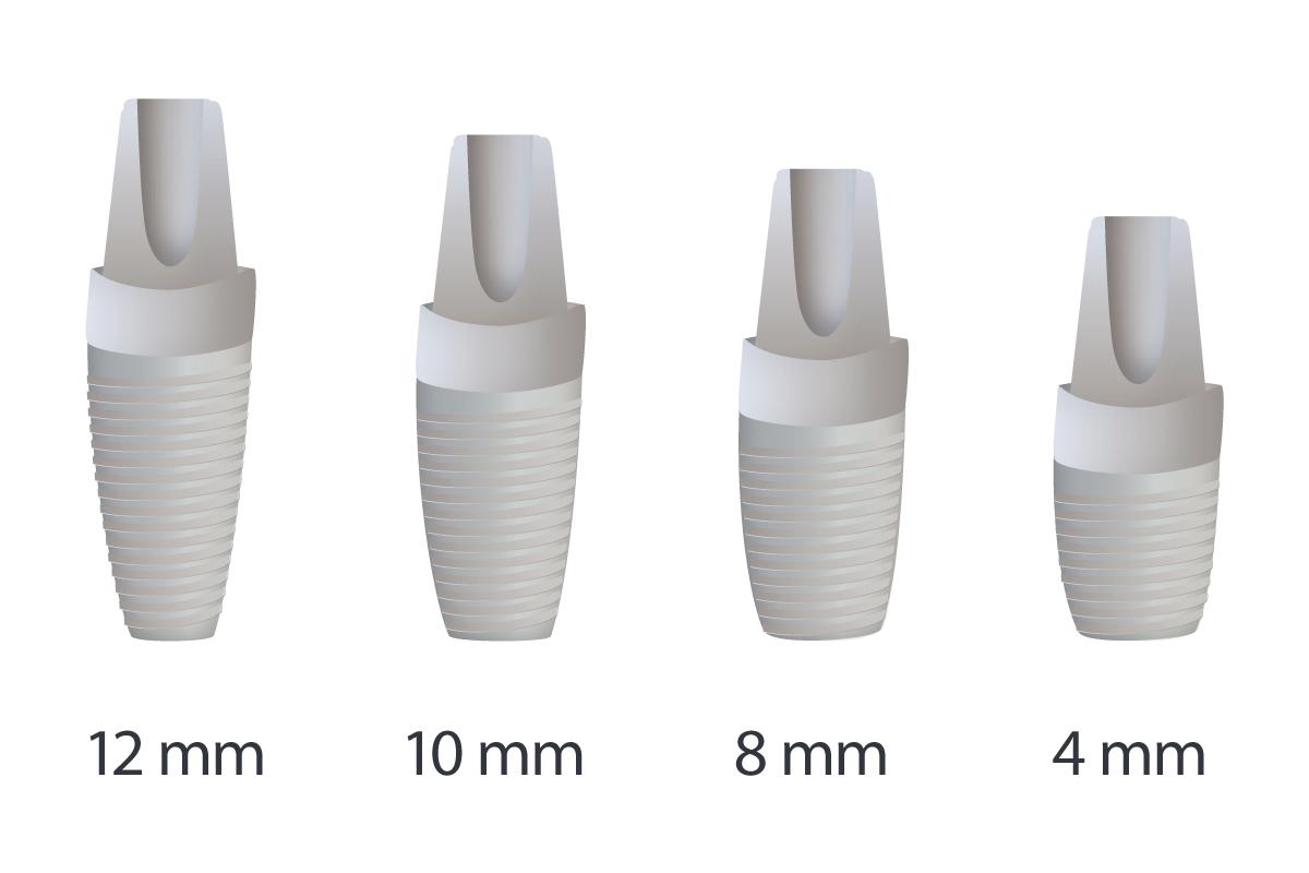 Implantes dentales cortos que son